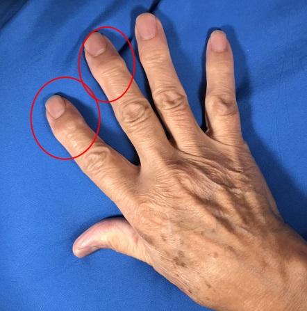 manos con artritis